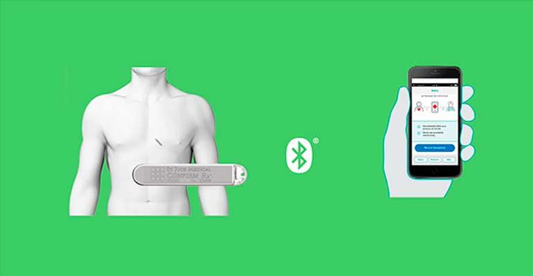 Confirm RX de Abbott, el primer monitor cardiaco continuo compatible con smartphones